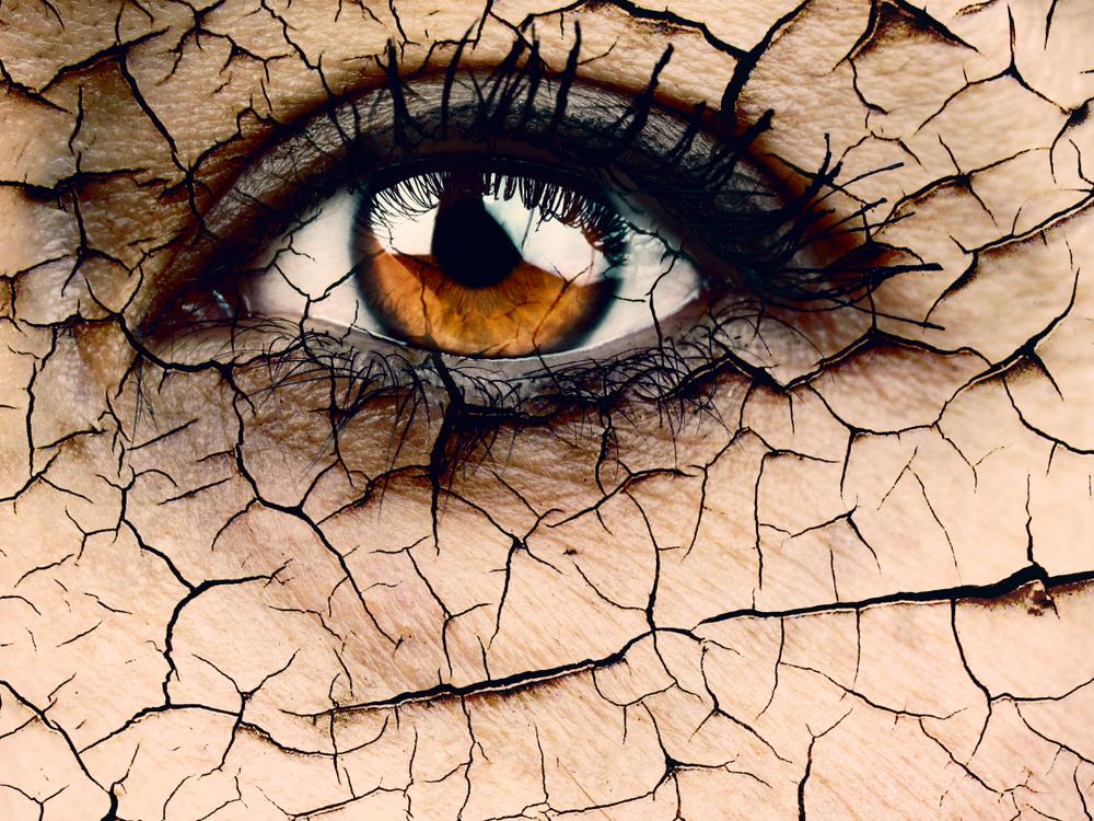 Sindrome dell'occhio secco? La luce pulsata può aiutare