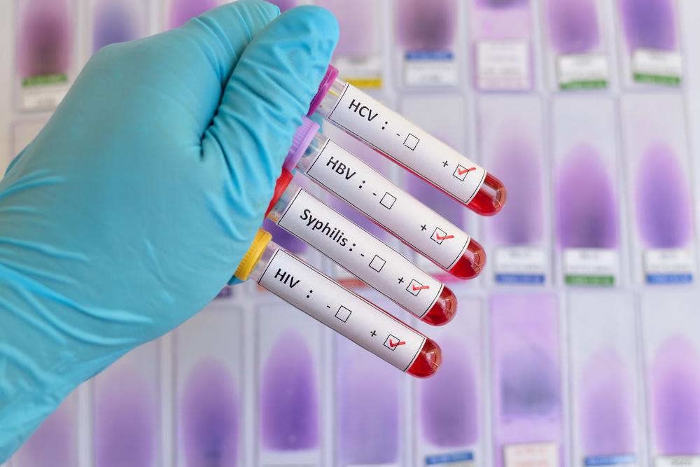 Malattie Sessualmente Trasmesse: conoscerle per evitarle