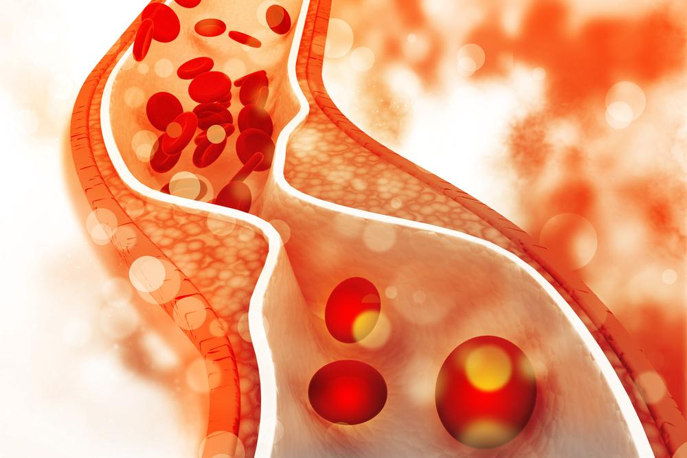 Colesterolemia: istruzioni per l'uso