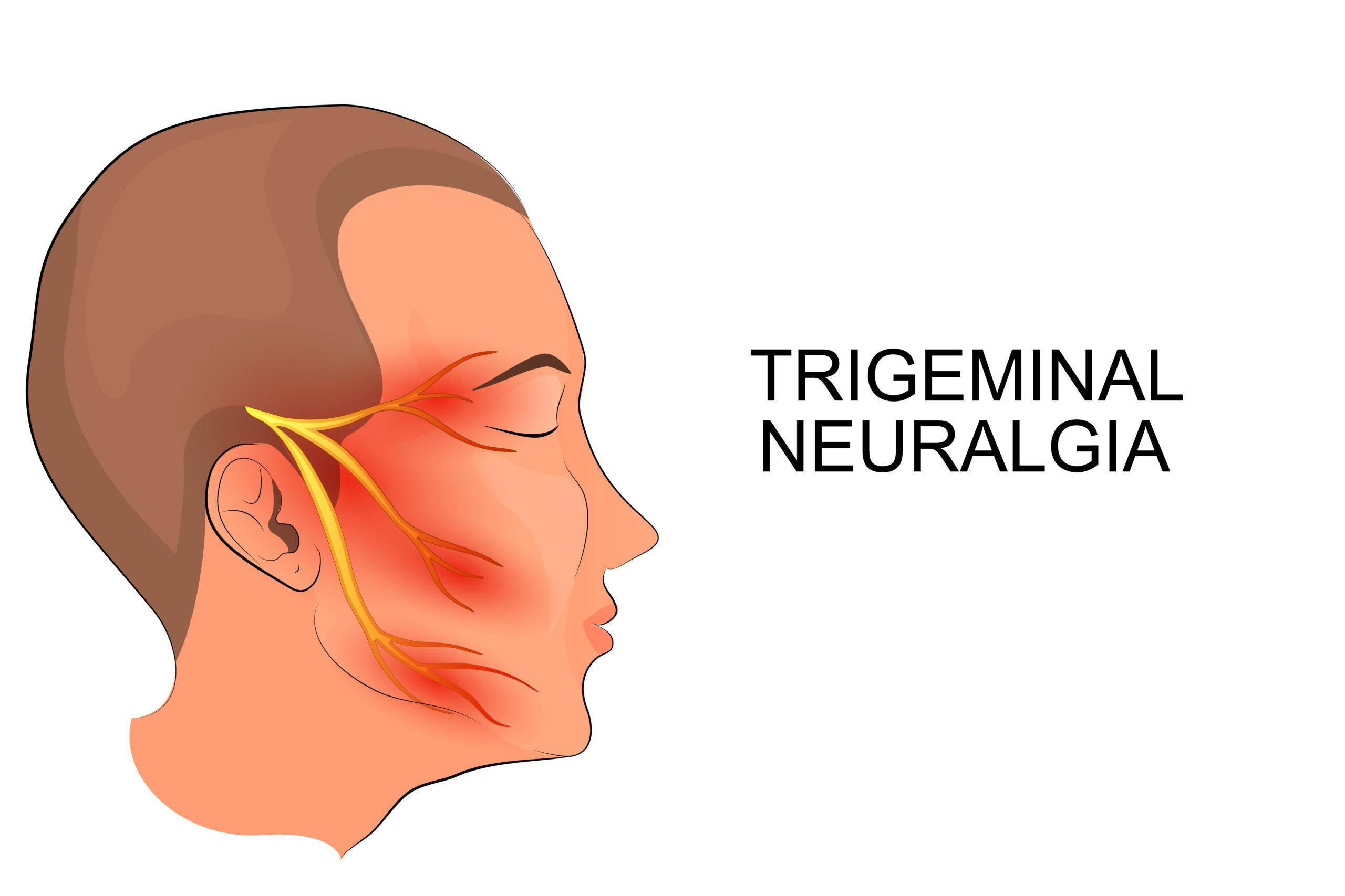 Nevralgia del Trigemino: un aiuto arriva dal trattamento radiochirurgico con CyberKnife