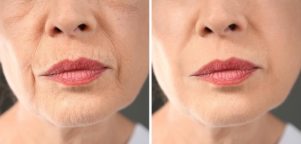Invecchiamento del volto: tecniche combinate allo scopo di limitare l'invasività