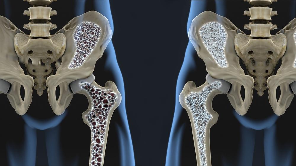 Ambulatorio dell'Osteoporosi