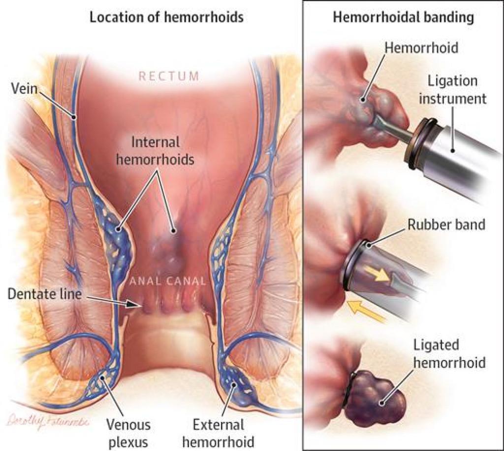 La legatura elastica delle emorroidi - CDI Centro Diagnostico Italiano