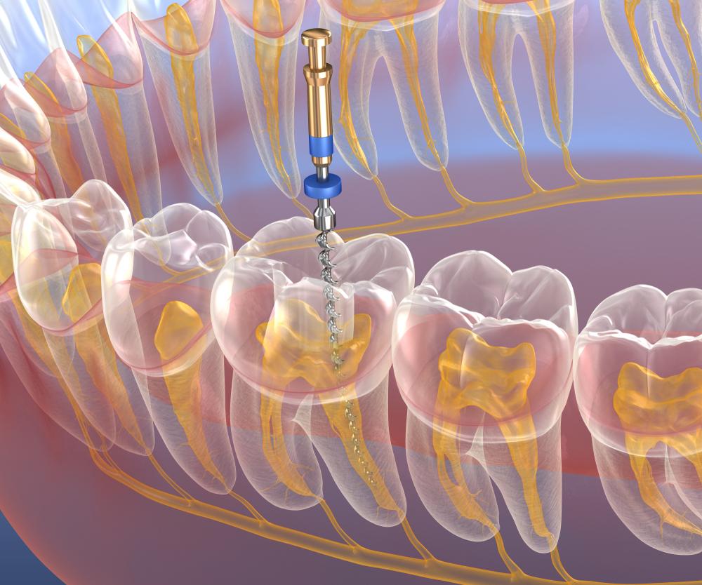 Endodonzia: la cura canalare