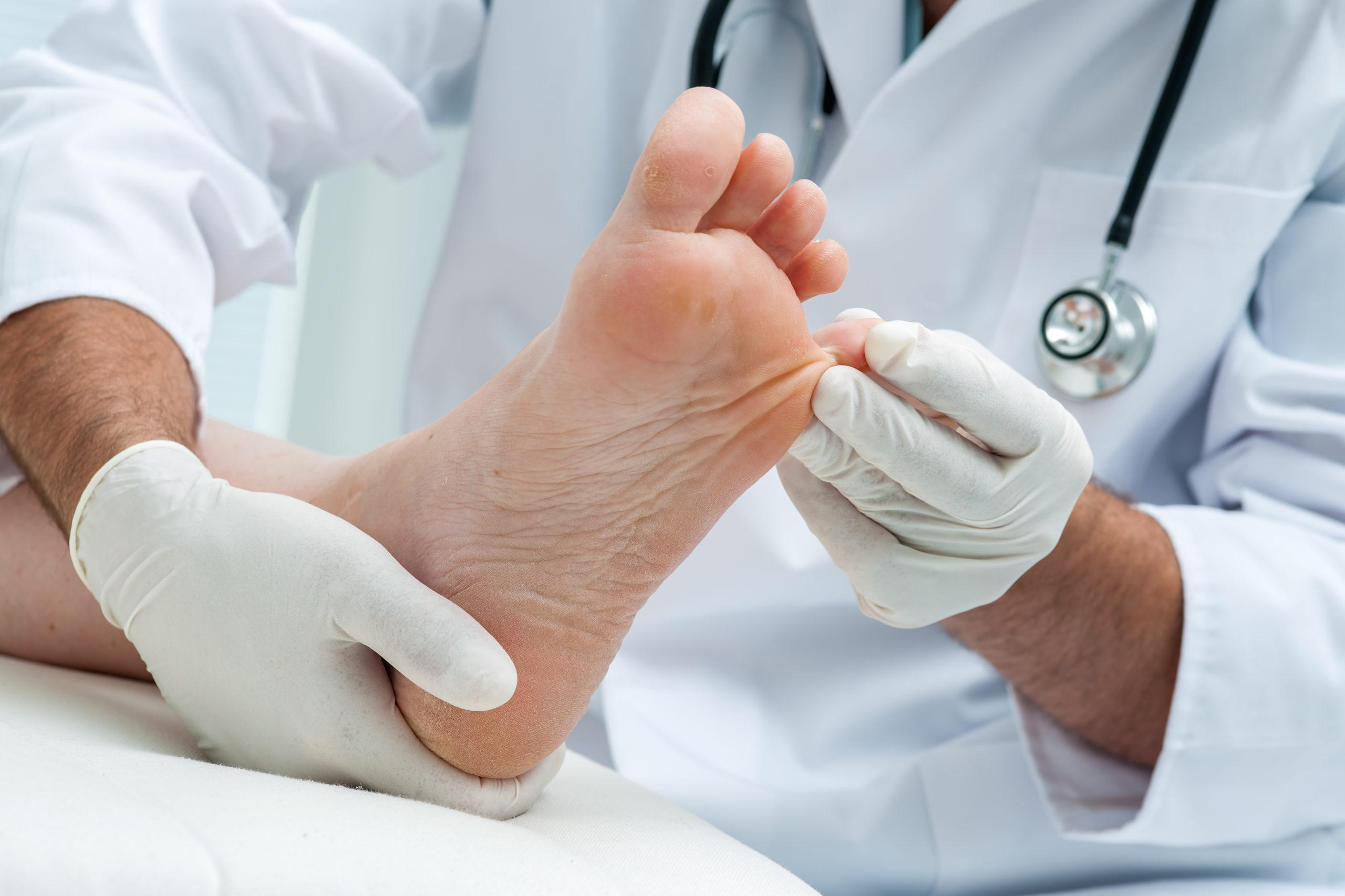 Ambulatorio di Micologia e Parassitologia Dermatologica
