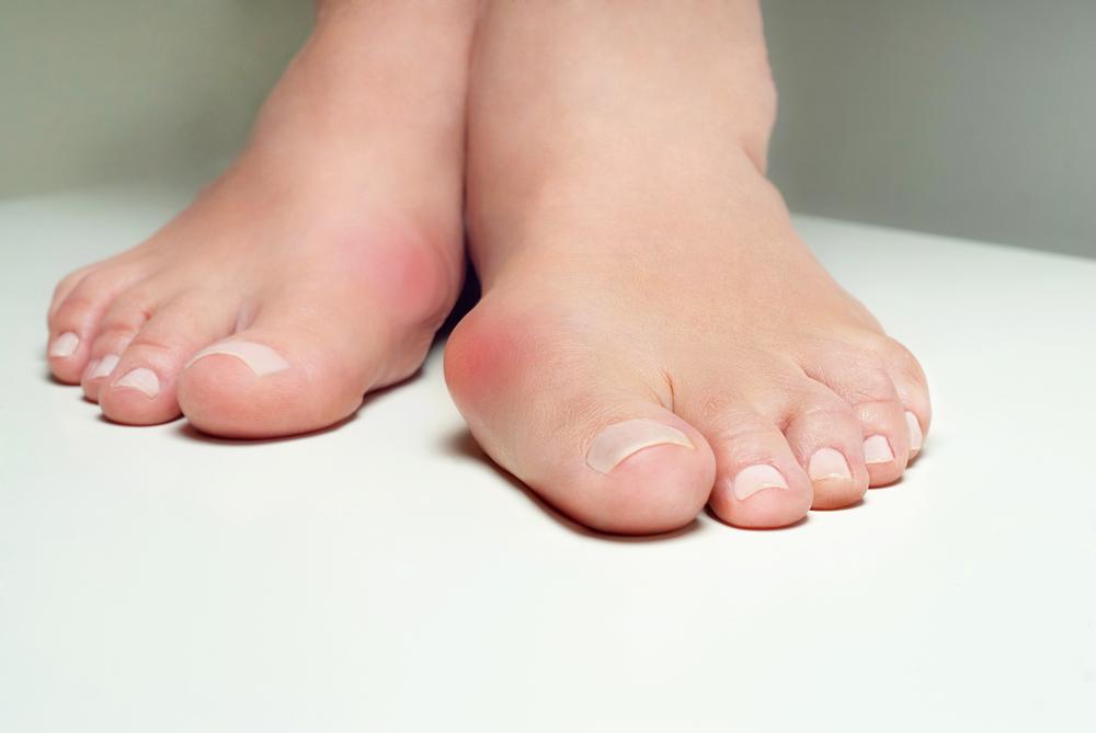 Le patologie del piede