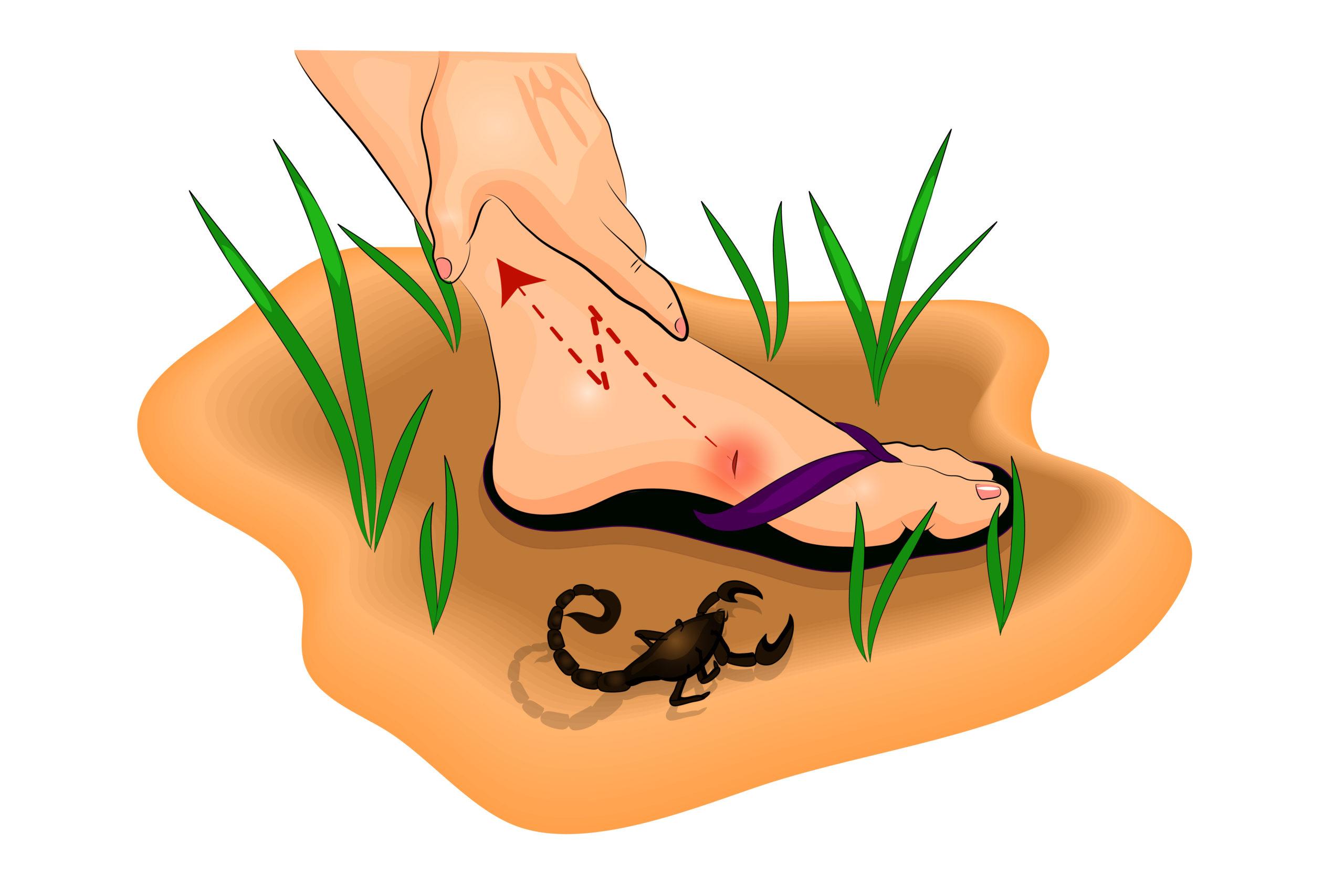 Punture di scorpioni velenosi