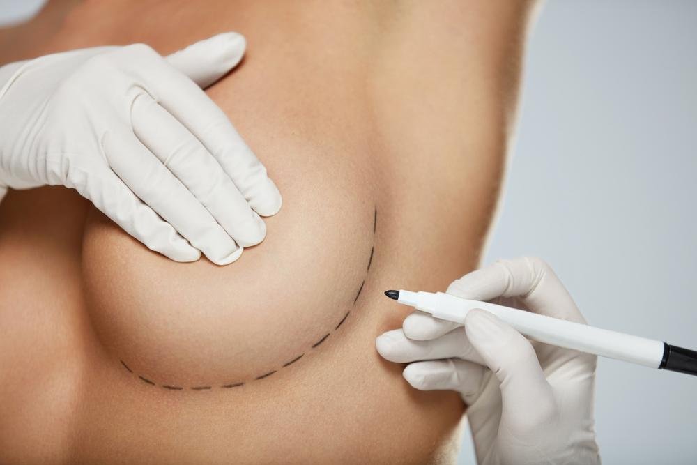Chirurgia Plastica ricostruttiva ed estetica del seno