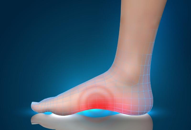 Deformazioni del piede e chirurgia minivasiva