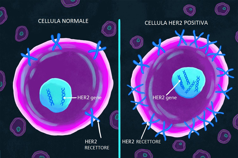 FISH: HER2 per tumore alla mammella