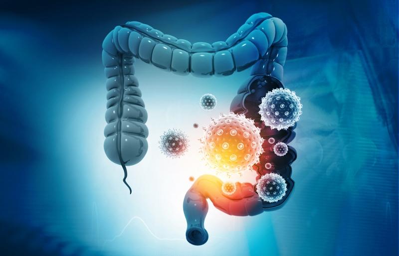 Il Pannello Colon. La Farmacogenomica: KRAS NRAS BRAF per il tumore al colon