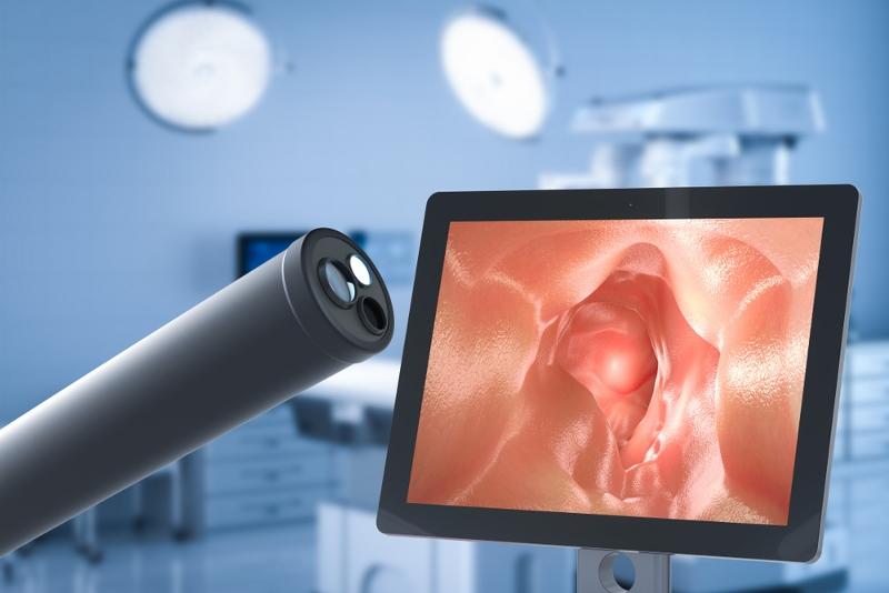 Il cancro del colon può essere sconfitto dallo screening